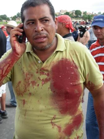 Honduran soldiers opened fire Sunday against unarmed protestors. Photo: Luis Miranda